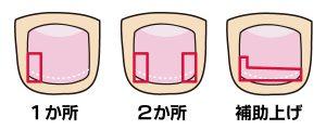画像に alt 属性が指定されていません。ファイル名: 巻き爪治療例.jpg